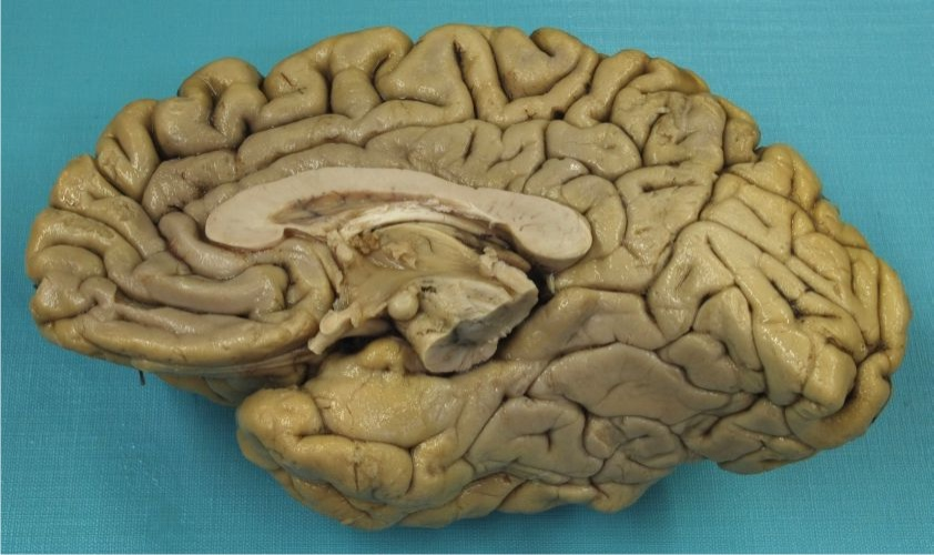 Neuroanatomie I Struktury Cns
